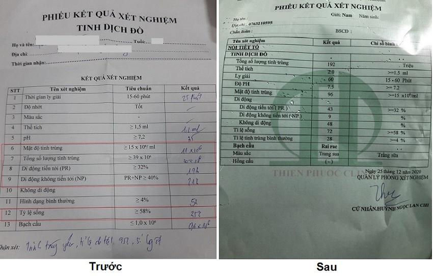 phiếu xét nghiệm tinh trùng trước sau
